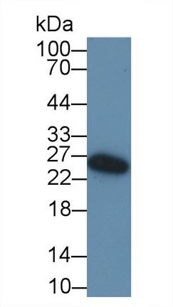 Polyclonal Antibody to Immunoglobulin D (IgD)