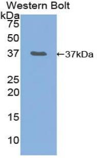 Polyclonal Antibody to Neurofibromin 2 (NF2)
