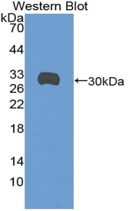 Polyclonal Antibody to Syndecan 1 (SDC1)