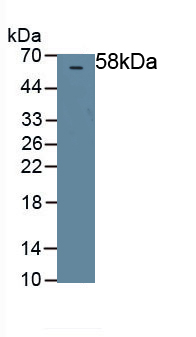 Polyclonal Antibody to Pigment Epithelium Derived Factor (PEDF)