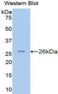 Polyclonal Antibody to Protein Kinase N2 (PKN2)