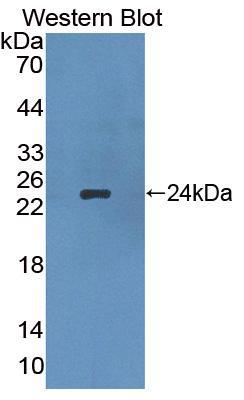 Polyclonal Antibody to Apolipoprotein B (APOB)