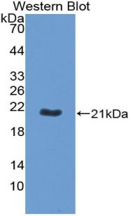Biotin-Linked Polyclonal Antibody to Apolipoprotein B (APOB)