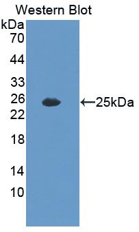 Polyclonal Antibody to Interleukin 35 (IL35)