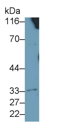 Polyclonal Antibody to Interleukin 4 Receptor (IL4R)