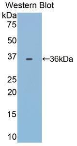 Polyclonal Antibody to Transferrin (TF)