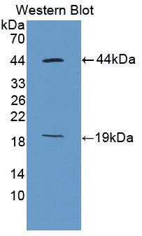 Polyclonal Antibody to Ki-67 Protein (Ki67P)