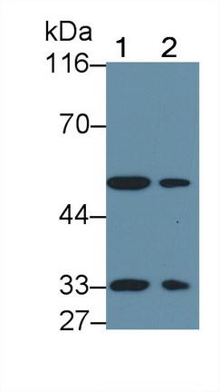 Polyclonal Antibody to Activin A Receptor Type II B (ACVR2B)