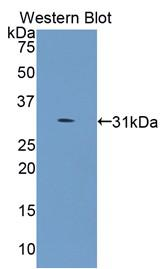 Polyclonal Antibody to Collagen Type IV Alpha 5 (COL4a5)