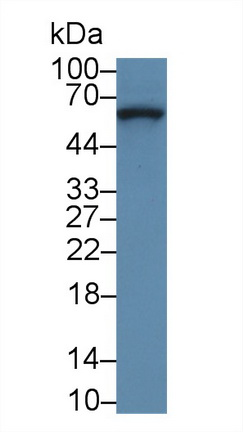 Polyclonal Antibody to Collagen Type VIII Alpha 1 (COL8a1)
