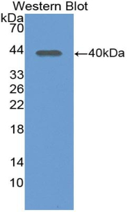 Polyclonal Antibody to Left/Right Determination Factor 1 (LEFTY1)