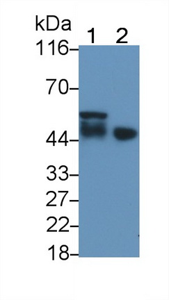 Polyclonal Antibody to Ciliary Neurotrophic Factor Receptor (CNTFR)