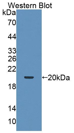 Polyclonal Antibody to Tripartite Motif Containing Protein 3 (TRIM3)