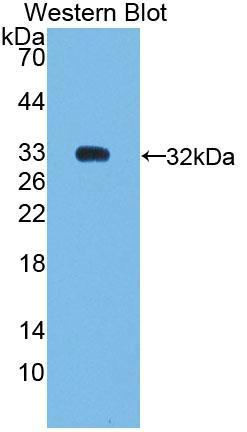 Polyclonal Antibody to Nuclear Receptor Subfamily 0,Group B,Member 2 (NR0B2)