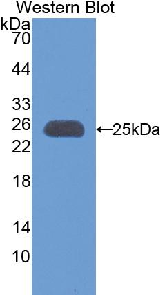 Polyclonal Antibody to Apolipoprotein M (APOM)