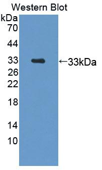 Polyclonal Antibody to N-Acylsphingosine Amidohydrolase 1 (ASAH1)