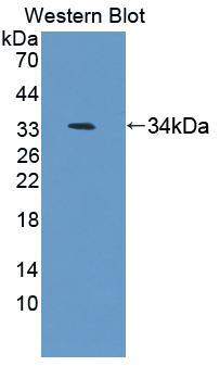 Polyclonal Antibody to Antizyme Inhibitor 1 (AZIN1)