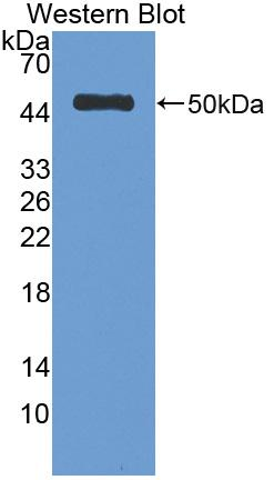 Polyclonal Antibody to Antithrombin (AT)