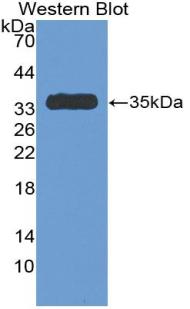 Polyclonal Antibody to Antithrombin (AT)