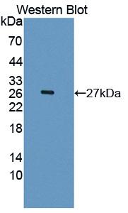 Polyclonal Antibody to Ectonucleotide Pyrophosphatase/Phosphodiesterase 2 (ENPP2)