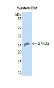 Polyclonal Antibody to Heat Shock 70kDa Protein 5 (HSPA5)