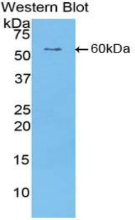 Polyclonal Antibody to Cartilage Intermediate Layer Protein (CILP)