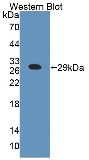 Polyclonal Antibody to Chimerin 2 (CHN2)