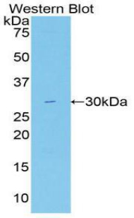 Polyclonal Antibody to Fatty Acid Synthase (FASN)
