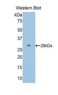 Polyclonal Antibody to Fibrinogen Gamma (FGg)