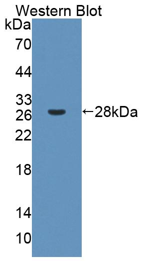 Polyclonal Antibody to Flavin Containing Monooxygenase 2, Non Functional (FMO2)