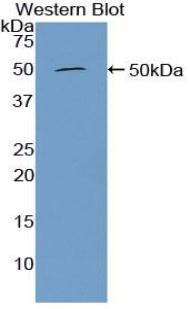 Polyclonal Antibody to Furin (FUR)