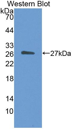Polyclonal Antibody to Germ Cell Nuclear Factor (GCNF)