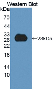 Polyclonal Antibody to High Density Lipoprotein Binding Protein (HDLBP)