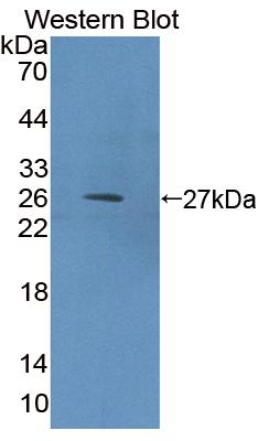 Polyclonal Antibody to Eukaryotic translation initiation factor 2D (EIF2D)