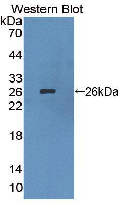 Polyclonal Antibody to Lens Intrinsic Membrane Protein 2 (LIM2)