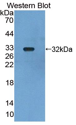 Polyclonal Antibody to Leucine Rich Repeats And Death Domain Containing Protein (LRDD)