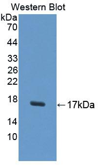 Polyclonal Antibody to Uroplakin 1A (UPK1A)