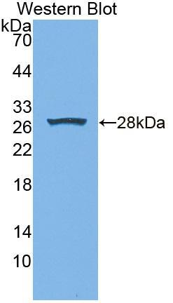 Polyclonal Antibody to Xanthine Dehydrogenase (XDH)