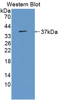 Polyclonal Antibody to 3-Mercaptopyruvate Sulfurtransferase (MST)