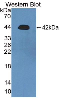 Polyclonal Antibody to Rhotekin (RTKN)