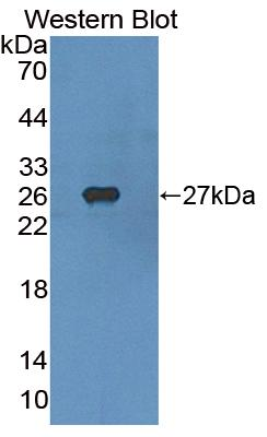 Polyclonal Antibody to Sterol Regulatory Element Binding Transcription Factor 1 (SREBF1)