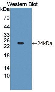 Polyclonal Antibody to Fibroblast Growth Factor 21 (FGF21)