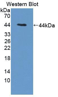 Polyclonal Antibody to Cathepsin W (CTSW)