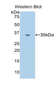 Polyclonal Antibody to Carcinoembryonic Antigen Related Cell Adhesion Molecule 1 (CEACAM1)