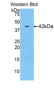Polyclonal Antibody to Glutathione Peroxidase 4 (GPX4)