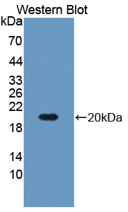 Polyclonal Antibody to Arginyl tRNA Synthetase (RARS)