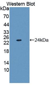 Polyclonal Antibody to Ferritin, Light Polypeptide (FTL)