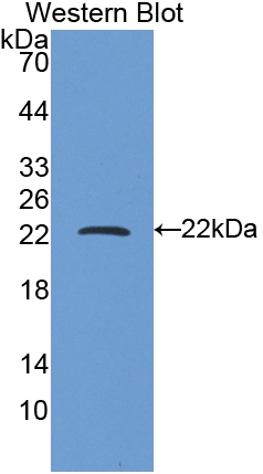 Polyclonal Antibody to Ferritin, Heavy Polypeptide (FTH)