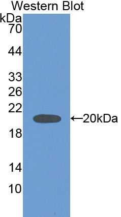 Polyclonal Antibody to Carbonic Anhydrase VB, Mitochondrial (CA5B)
