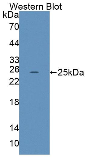 Polyclonal Antibody to Low Density Lipoprotein Receptor Related Protein 2 (LRP2)
